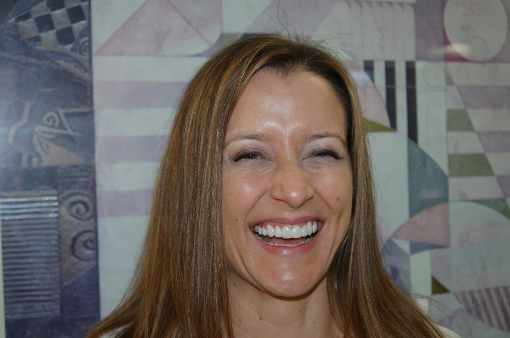 Smile Makeover Scottsdale Arizona